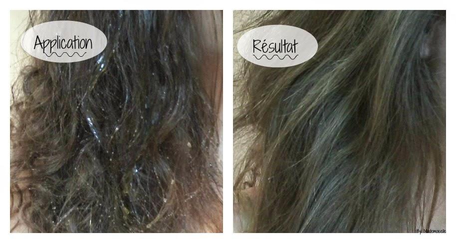 Les vitamines à et et contre la chute des cheveux