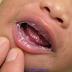 Bebeklerde Ve Annenin Memesinde Pamukçuk Neden Olur?