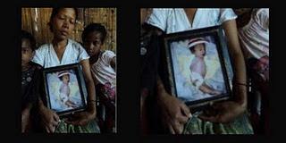 Ibu Melahirkan Bayi Mirip Putri Duyung