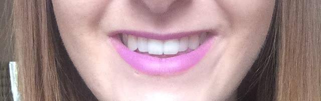 Throughneweyesx Blanx Teeth Whitening Review