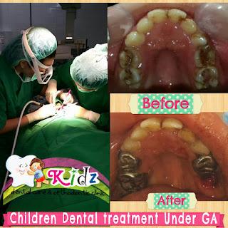 Merawat gigi anak dengan bius umum