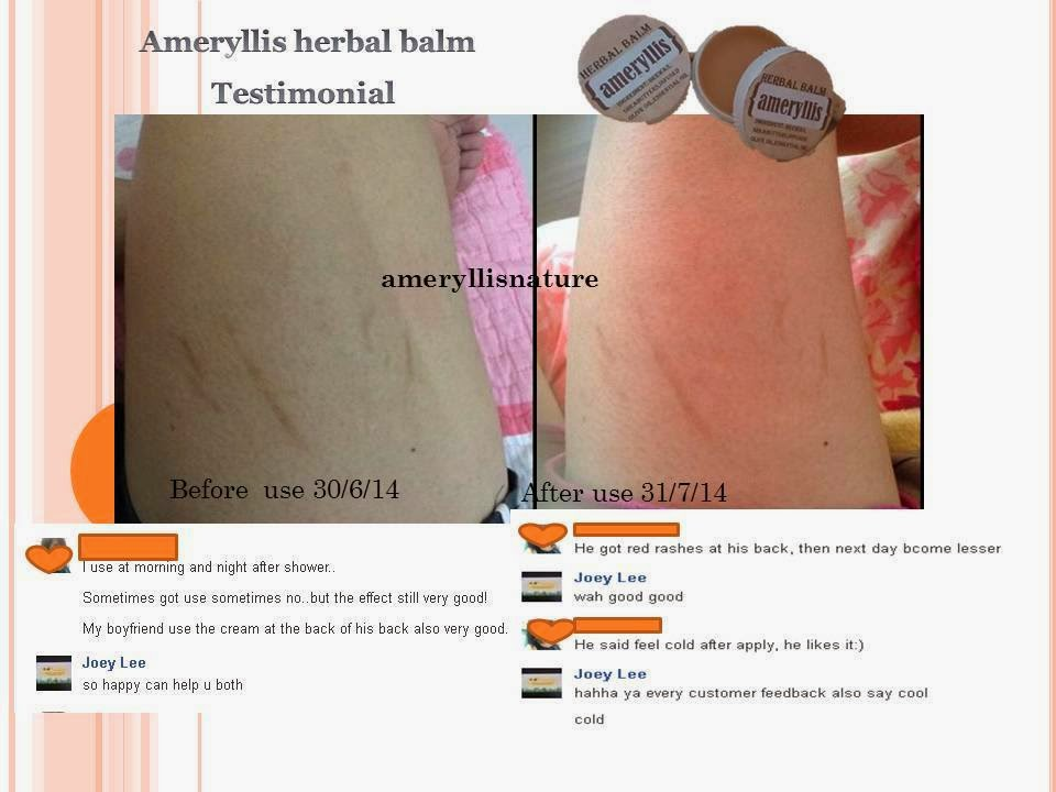 feedback 1 years old thigh scar reduce in 1 month ameryllis herbal balm