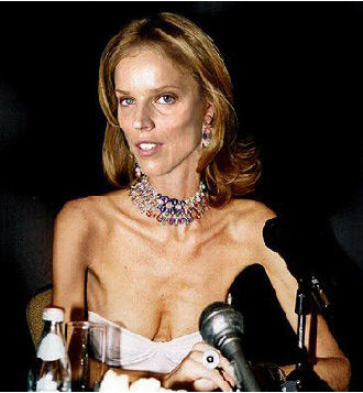 anorexia models that died Models that died from anorexia nervosa and eating disorders ana carolina reston she was young, happy and beautiful she was successful in her modelling career, walking runways all over the world, in various fashion weeks.