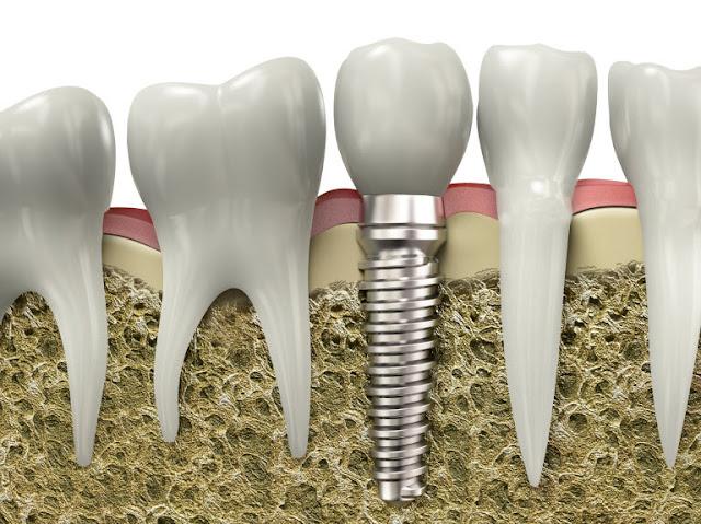 Gambar Implan Gigi (implant gigi) Gigi Palsu Permanen Solusi gigi berlubang