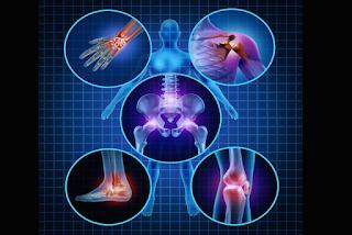 10 causas da Artrose