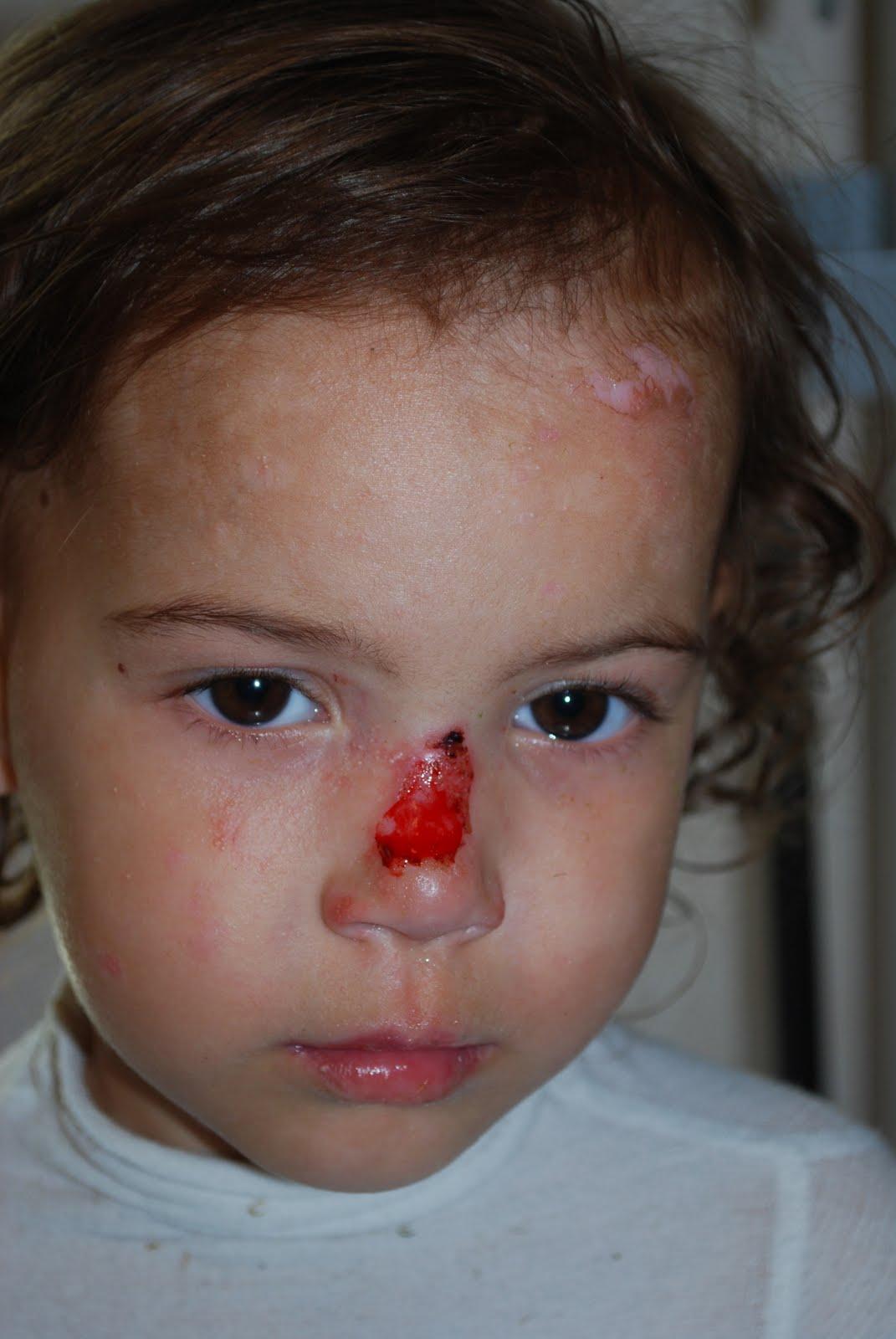 sår i näsan som inte vill läka