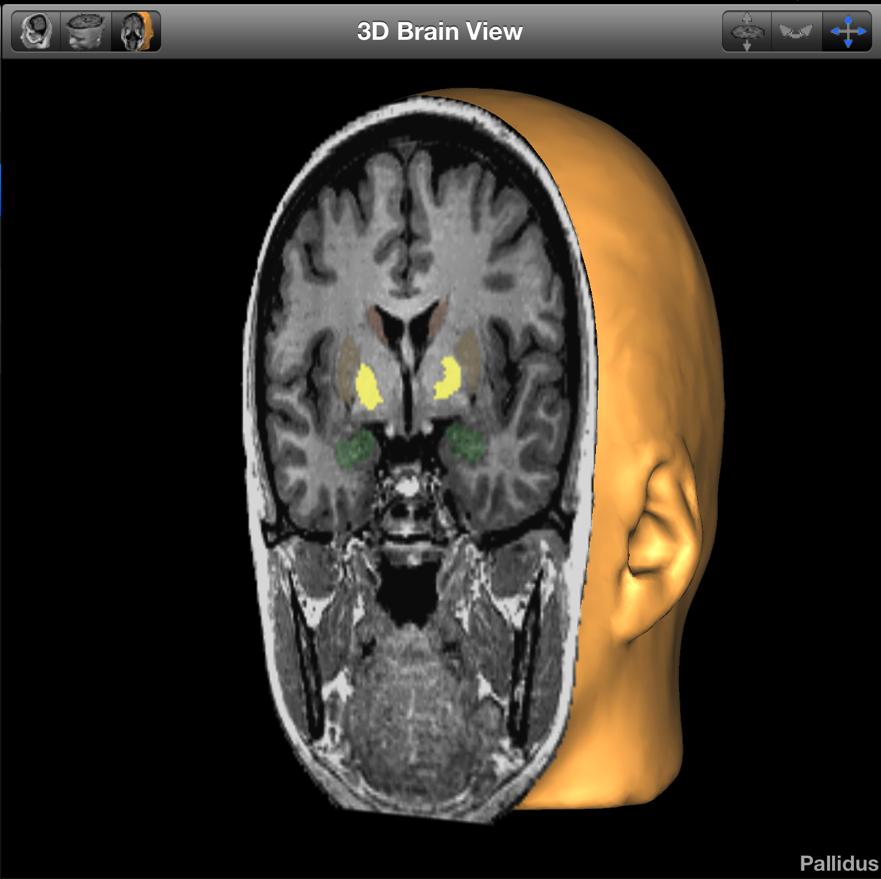 Advances In Parkinson's Disease Treatment: Part II | Brain Posts