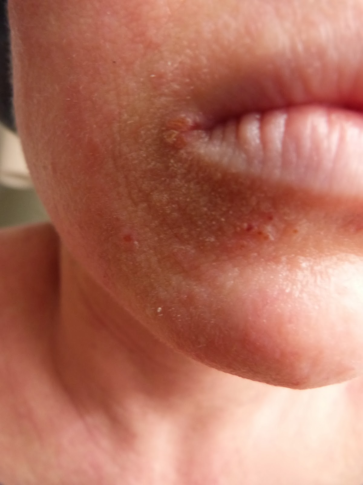 topical steroid addiction syndrome