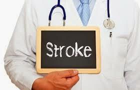 Fakta Tentang Penyakit Stroke