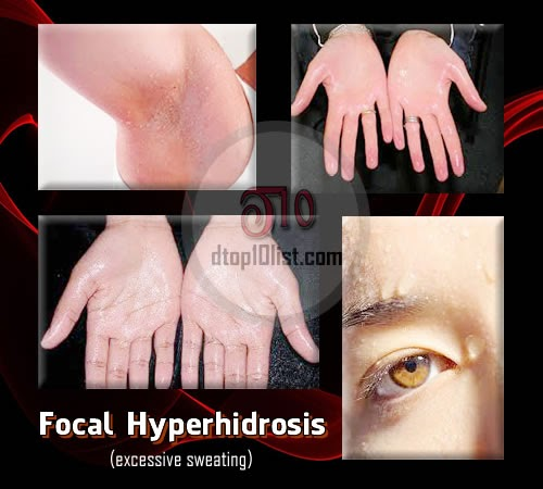 Focal hyperhidrosis (excessive sweating)