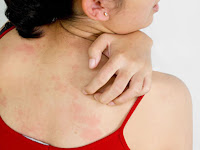 Cara-cara Atasi Biang Keringat Dan Alergi Cuaca