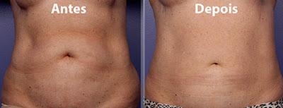 Fotos de resultados de criolipólise no abdomem