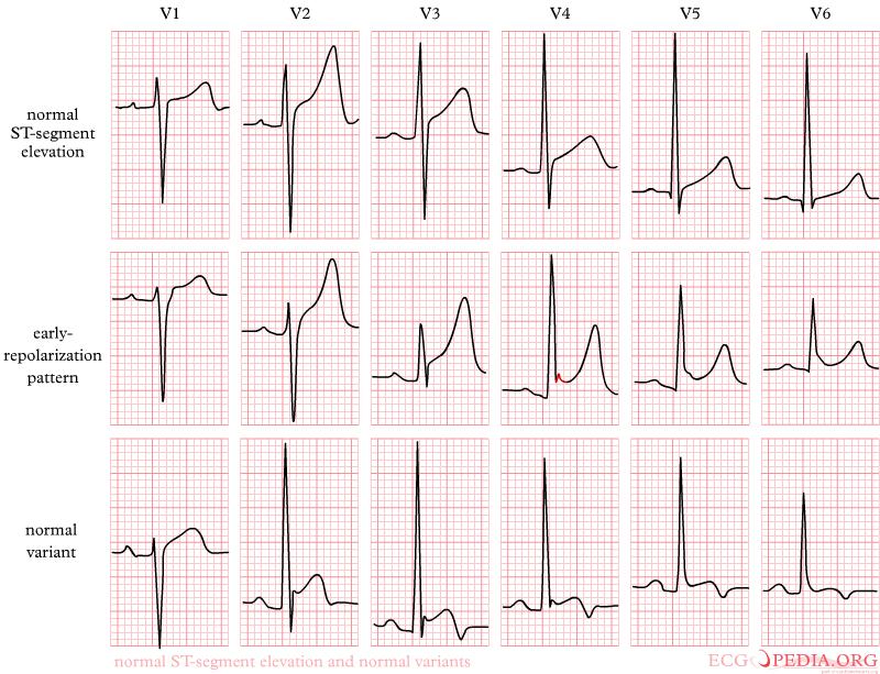 Ont Elevation Images : News klinische notfall und akutmedizin fancy ekg what