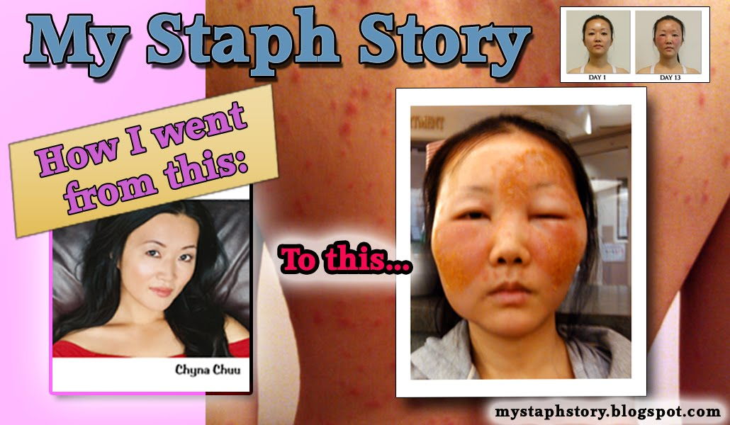 My Staph Story