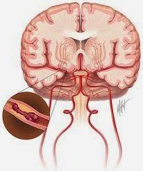pengobatan alternatif penyakit stroke