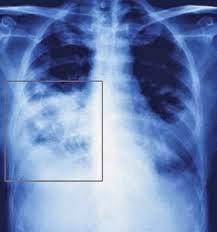 Obat Yang Aman Untuk Penyakit Pneumonia
