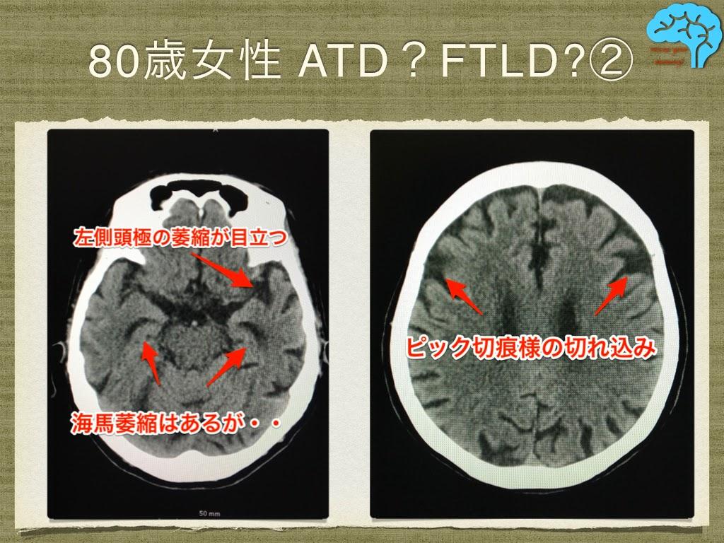 ATDとFTLD、両方の特徴をもつCT所見