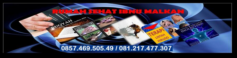 RUMAH SEHAT IBNUMALKAN/LEBAH/LINTAH/AKUPUNTUR/AKUPRESUR/BEKAM/GURAH/RUQYAH/DIAGNOSA