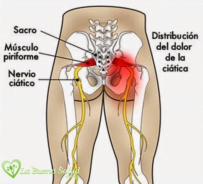 La osteocondrosis del departamento lumbar de la columna vertebral del ejercicio