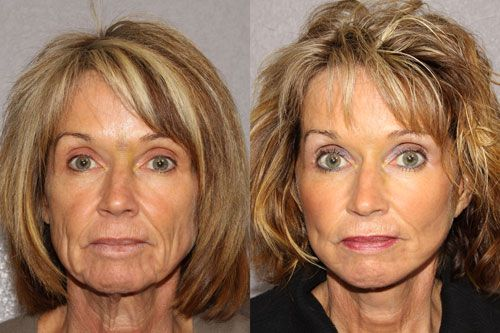 Folks Are Producing Genuine Acupressure Facelifts Using Techniques And Face Aerobics Solutions