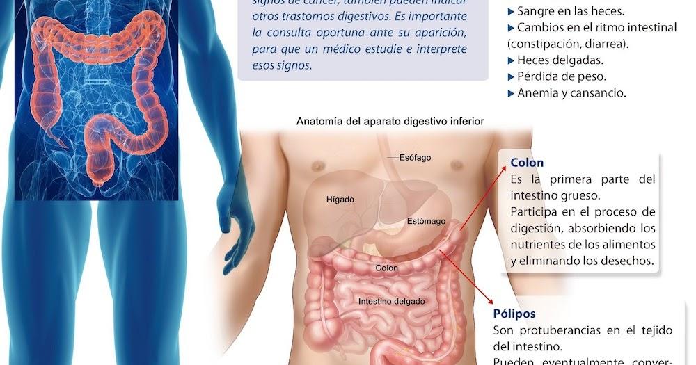 El ejercicio reduce el riesgo de pólipos en el colon, lo que resulta ...