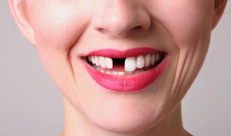 toothlesslady.jpg