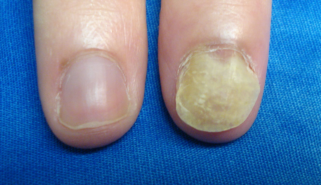 VIRTUAL GRAND ROUNDS IN DERMATOLOGY 2.0: Single Nail Dystrophy