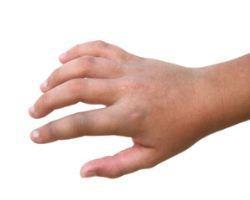 Tangan kaku membengkak