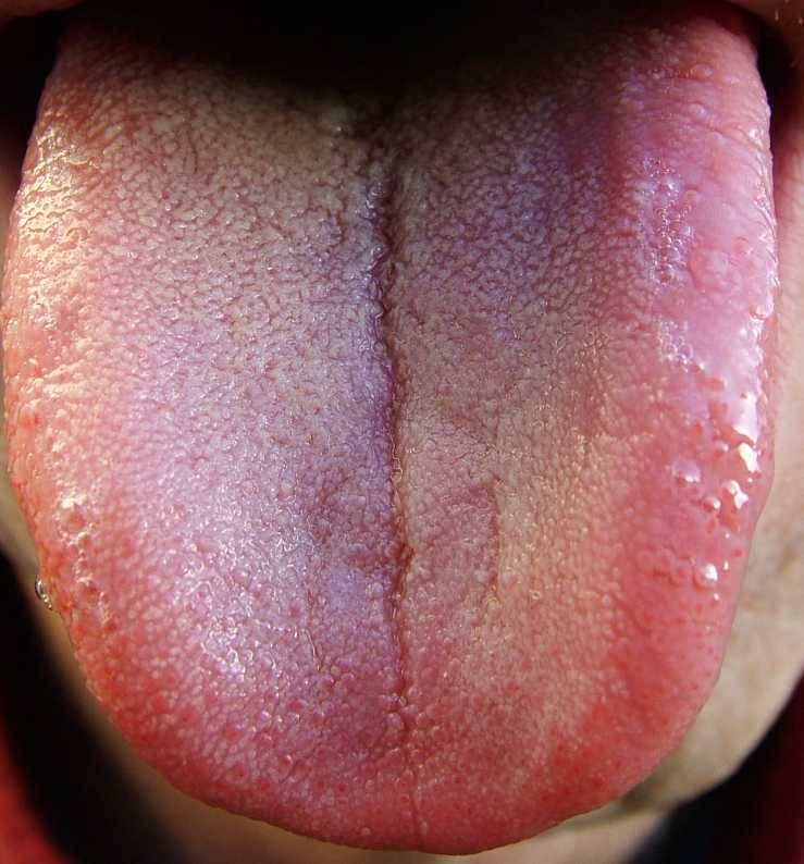 how to get a healthy looking tongue