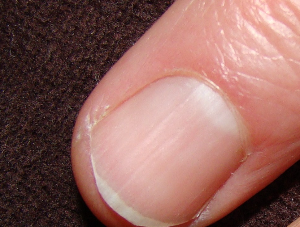 Fingernails can offer clues to health problems ...
