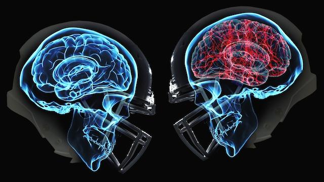 http://2.bp.blogspot.com/-9cWgv-IhlYM/VoCeMqxBJLI/AAAAAAAABYQ/cLHdhr135Rc/s1600/concussion.jpg