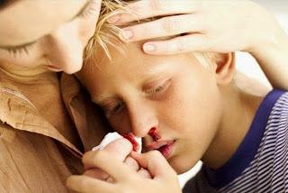 Penyebab Sepele Mimisan Pada Anak
