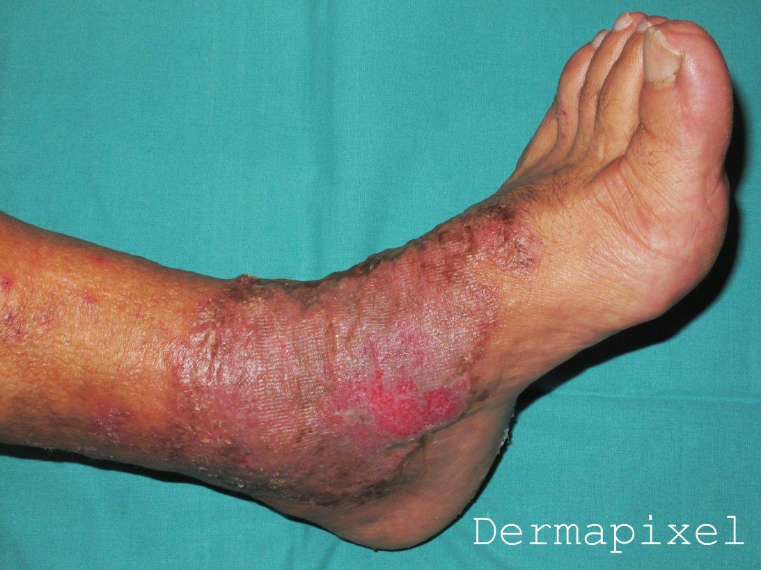 Como curar la enfermedad varicosa