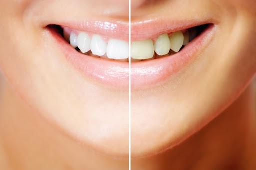 Cara Cepat Dan Efektif Memutihkan Gigi Dalam 3 Menit