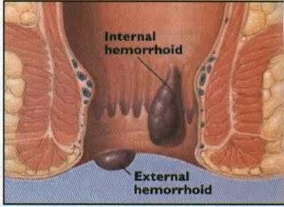 Image obat wasir atau hemorrhoid