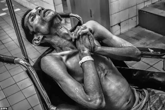 Adik Rakam Penderitaan Pada Saat Akhir Kematian Abang