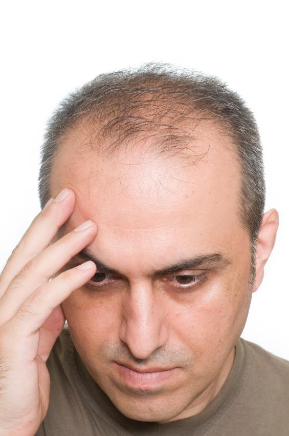 Почему выпадают брови у мужчин причины