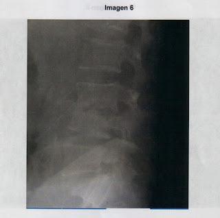 external image Imagen+6