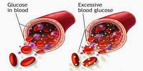 Повышенный сахар в крови у беременных но не диабет
