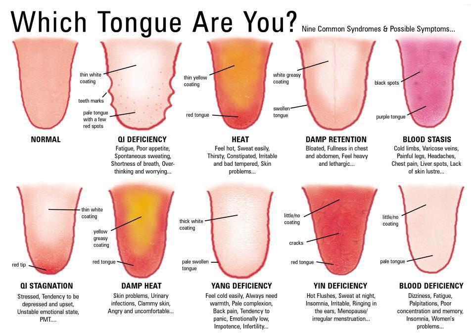 Acu-Putten Acupunctuur Massage Kruiden: Tongdiagnose – de ...