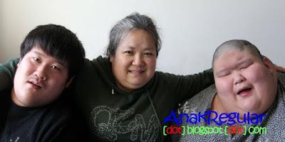 Perju<a hreangan Seorang Ibu Merawat 2 Anaknya Penderita Autisme