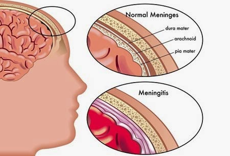 Penyebab Penyakit Meningitis Radang Selaput Otak
