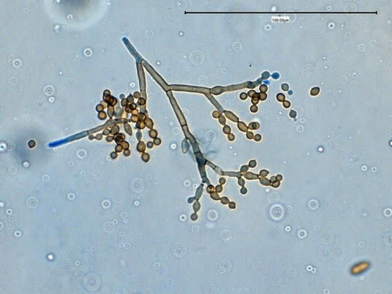 Fun With Microbiology (What's Buggin' You?): Cladosporium ...