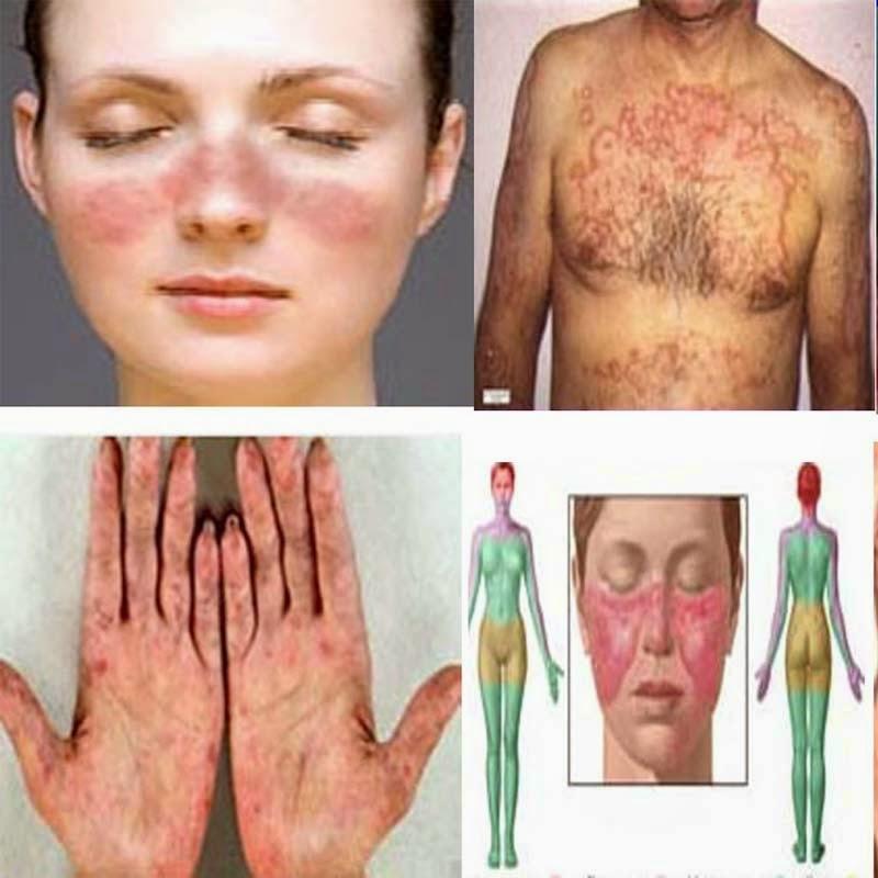 Penyakit Lupus Erythematosus Tradisional Penyakit Lupus