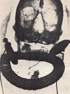 X-ray photograph of the upper part of the unwrapped mummy of Kha, showing him wearing jewelry beneath his bandages, including earrings and a shebyu necklace of heavy metal beads probably of gold.