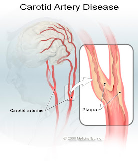carotid artery disease and stroke In carotid artery disease, a waxy substance (plaque) clogs the arteries that bring blood to your brain and head find out how it cause a stroke.