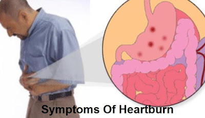 Causes, Symptoms And Treatment Of Heartburn