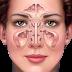 Cara Pengobatan Penyakit Sinusitis | Penyakit Sinusitis | Cara Mengatasi Dan Mengobati Penyakit Sinusitis