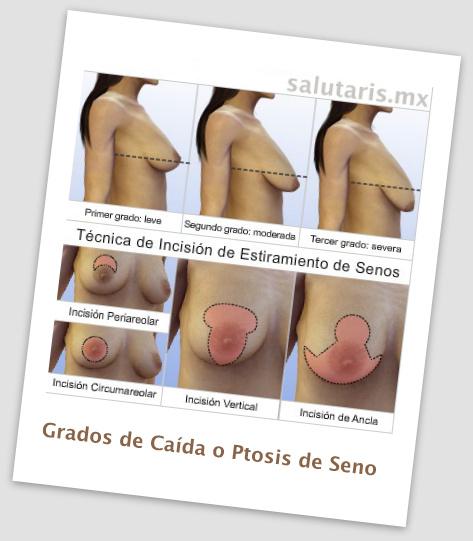 grados de caida de los senos busto y tecnicas para una pexia o levantamiento mamario