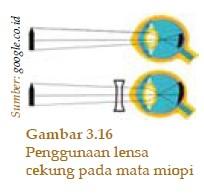 Miopi 1